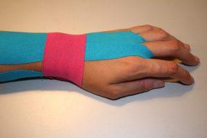 Handgelenk tapen bei Sehnenscheidenentzündung
